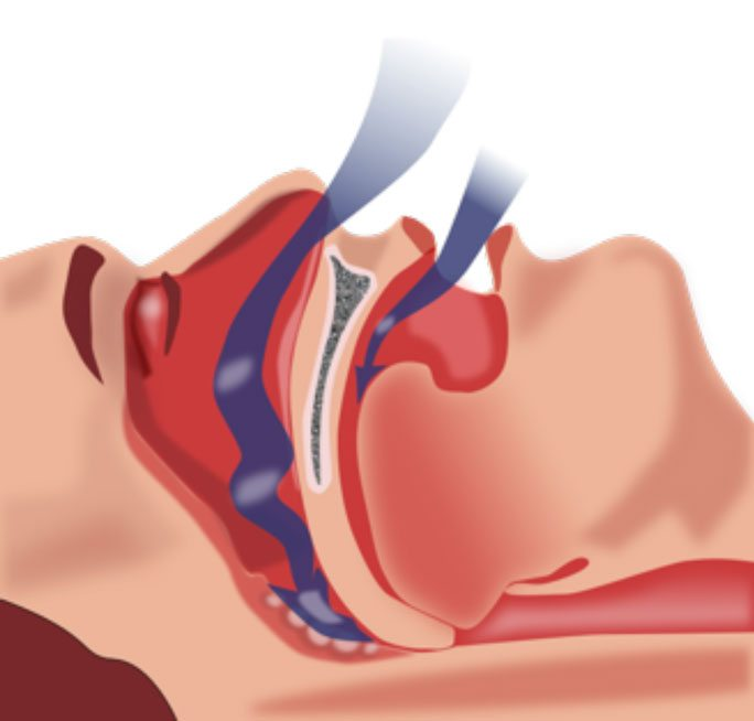 A blocked airway, or when the soft palate located in the back of the mouth collapses against the throat, causes obstructive sleep apnea.