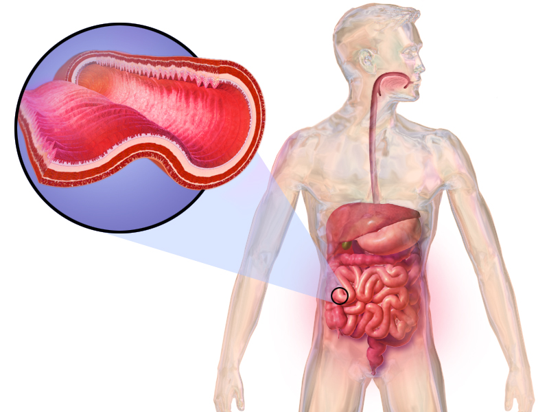 MAPping Out a Bacterial Attack on Crohn's Disease